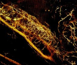 Human coronary artery filled with MICROFIL®